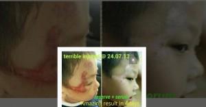boy scar